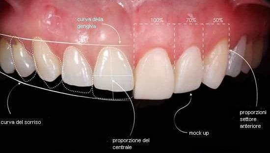 nuova selezione vendita più economica design professionale ESTETICA DENTALE – Dentista Legnano | Tel: 334.7751690 ...