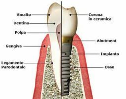implantologia Legnano